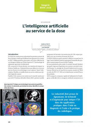 L'intelligence artificielle au service de la dose
